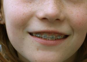 Zahnspangen alleine lösen oft nicht das Problem Zahnfehlstellung...