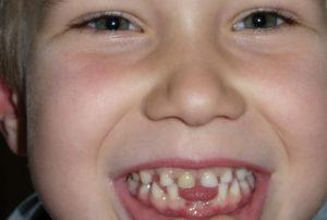 Zahnpflege von klein auf, ist wichtig...